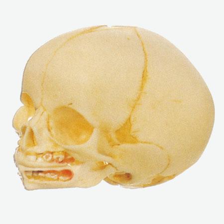 0002092_gda11115_infant_skull