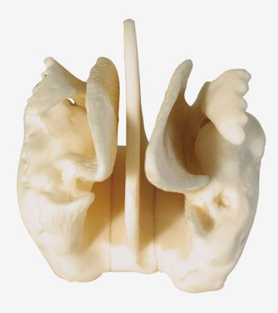0002098_gda11121_amplified_ethmoid_bone