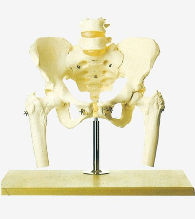 0002104_gda11129_pelvis_with_lumbar_spine_and_femoral_head