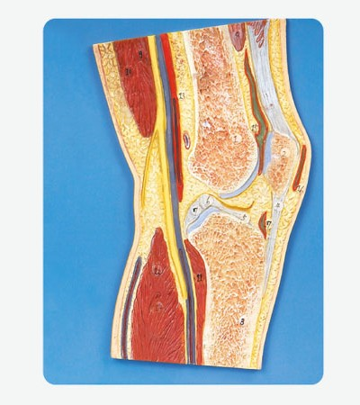 0002116_gda11206_knee_joint_section