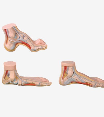 0002129_gda11310_normal_flat_arched_foot